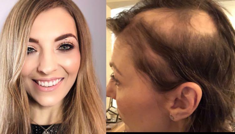pierde cabello por estrés boda